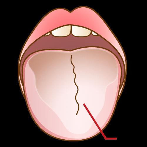 舌苔のイラスト