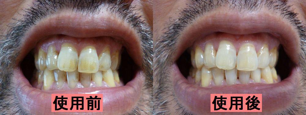 オーラパール使用前と使用後の比較写真