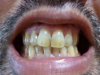 オーラパール使用前の管理人の歯の汚れた状態